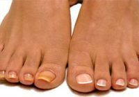 yellow toenail comparison
