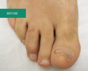 before toe nail surgery photo