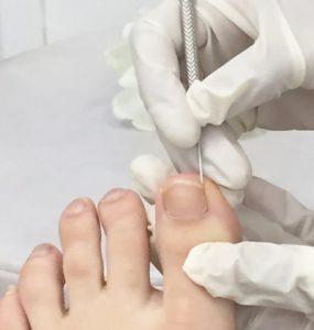toe nail surgery