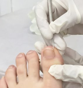 toe nail surgery photo