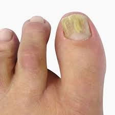 Foot Nails PACT Therapy Consultation
