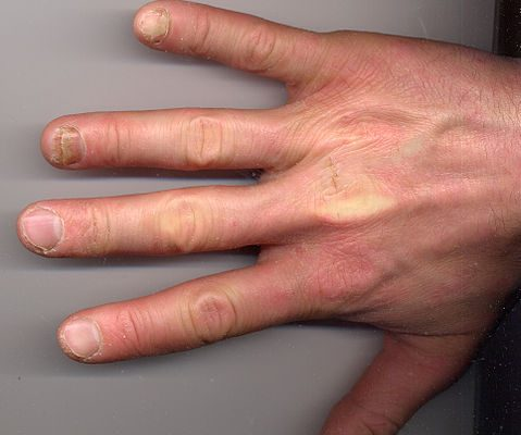fungus fingers