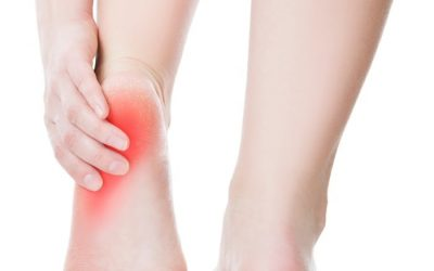 Sore foot at heel | Mint Foot Care