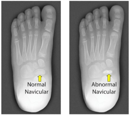 Kohler's Disease X-Ray | Mint Foot Care